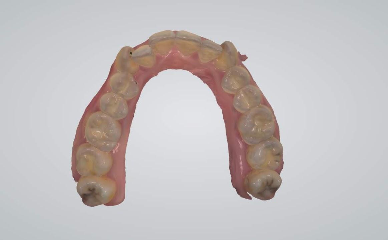 中壢牙醫、全口植牙推薦【當代牙醫植牙中心】牙齒健檢、洗牙初體驗,完整一條龍式服務 @秤瓶樂遊遊